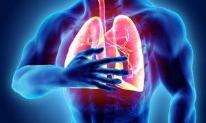 بیماری «پرفشار ریوی»: رنج ناشناخته ۵۵۰۰ هموطن