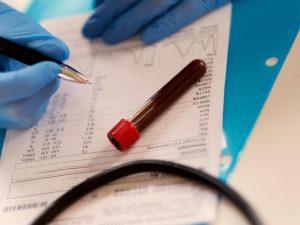 راهنمای کامل خواندن نتیجه آزمایش خون و تشخیص بیماری